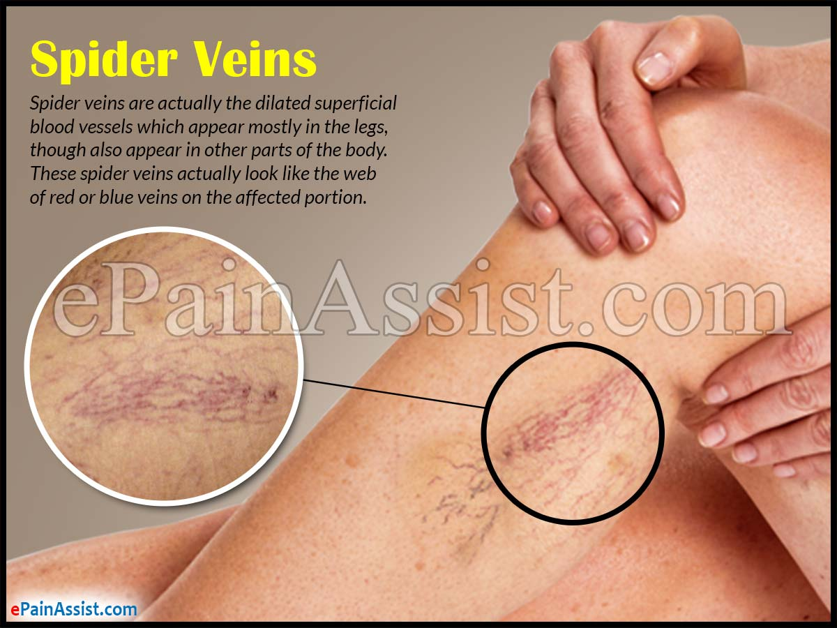 reasons for spider veins
