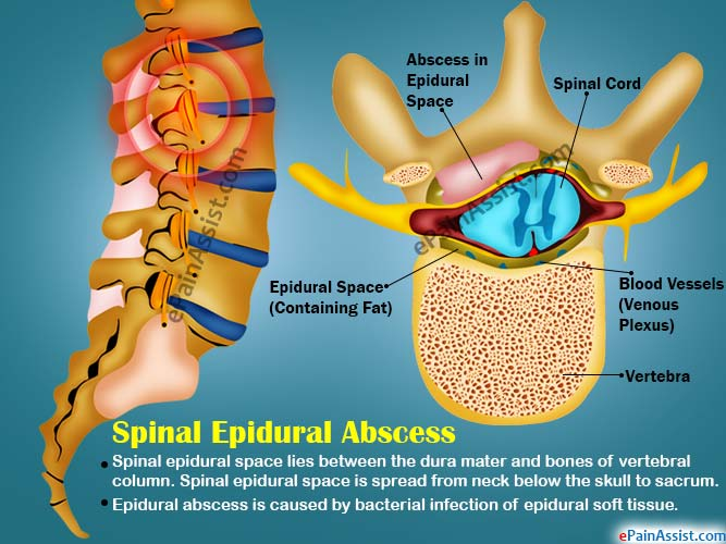 advantages and disadvantages of the epidural Epidural analgesia for pain control after surgery might provide you with some specific benefits: risks and benefits of regional anesthesia 1.