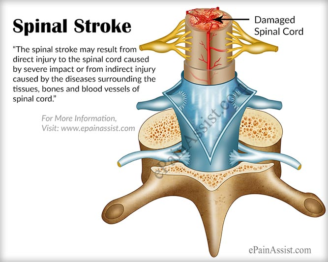 Spinal Strokecausessymptomstreatmentprevention