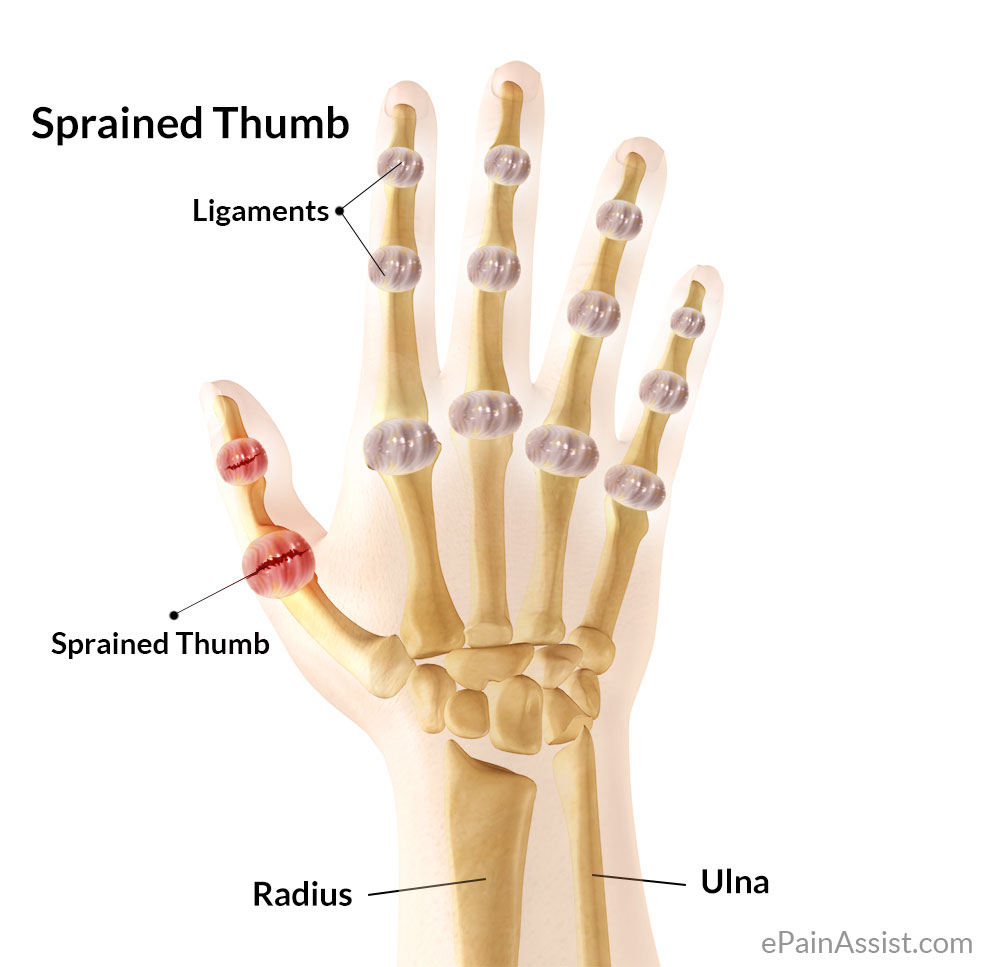 Thumb Pain Caused By Sprained Thumb