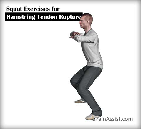 Squat Exercises for Hamstring Tendon Rupture