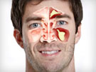 Sinus Headaches: Causes and Treatment