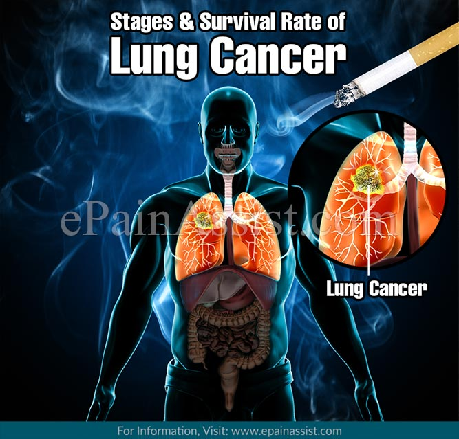 What are the Stages of Lung Cancer?