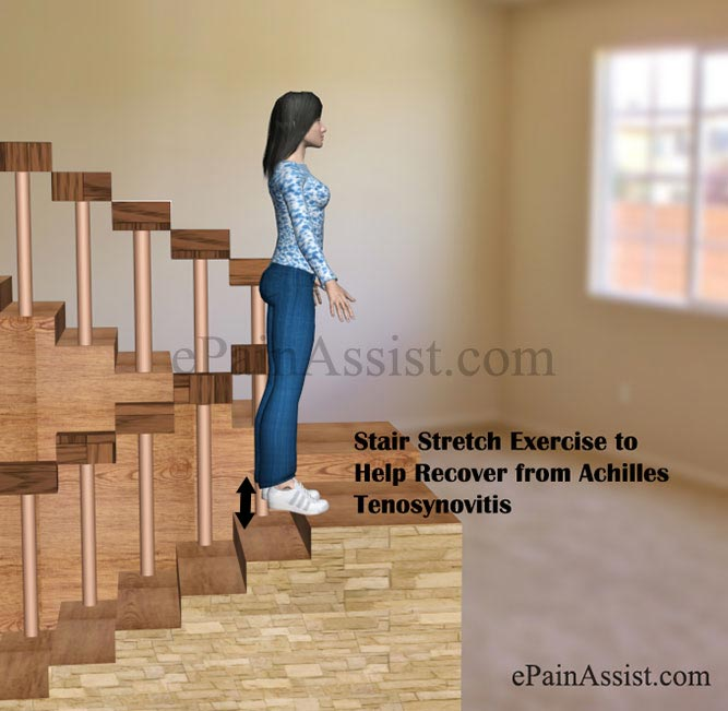 Stair Stretch Exercise to Help Recover from Achilles Tenosynovitis or Paratenonitis