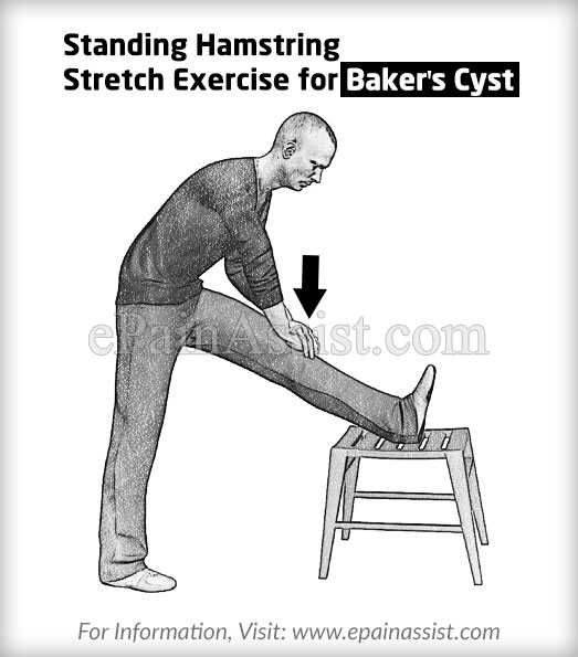 Standing Hamstring Stretch Exercise for Baker's Cyst or Popliteal Cyst