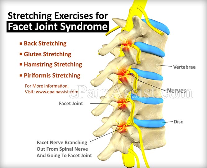 Stretching Exercises for Facet Joint Syndrome
