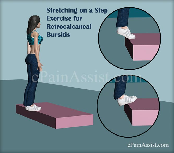 Stretching on a Step for Retrocalcaneal Bursitis or Achilles Tendon Bursitis