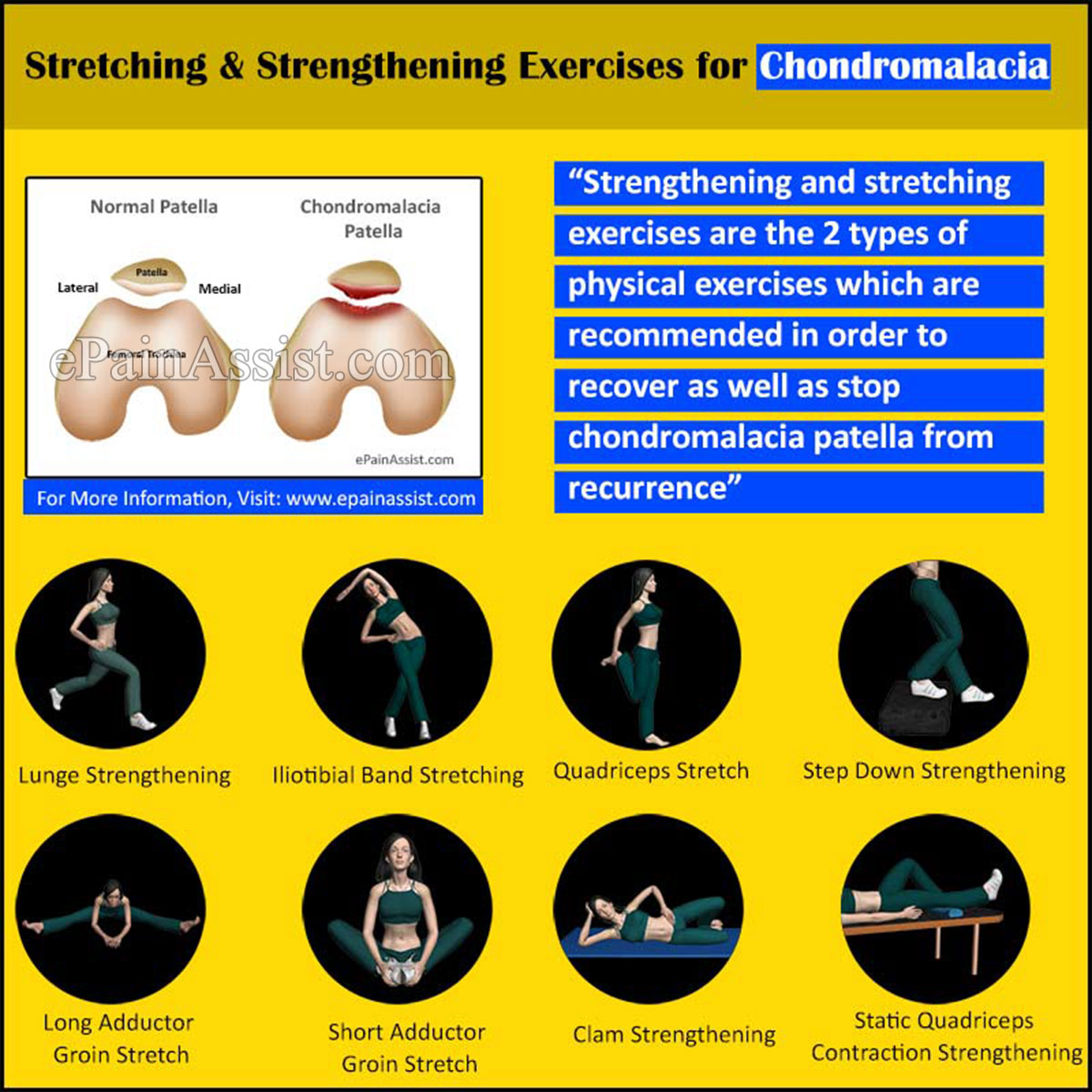chondromalacia patella|sports massage|exercises|stretching, Skeleton