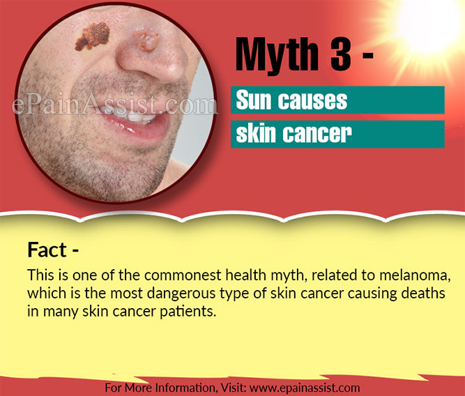 Myth 3 - Sun causes skin cancer