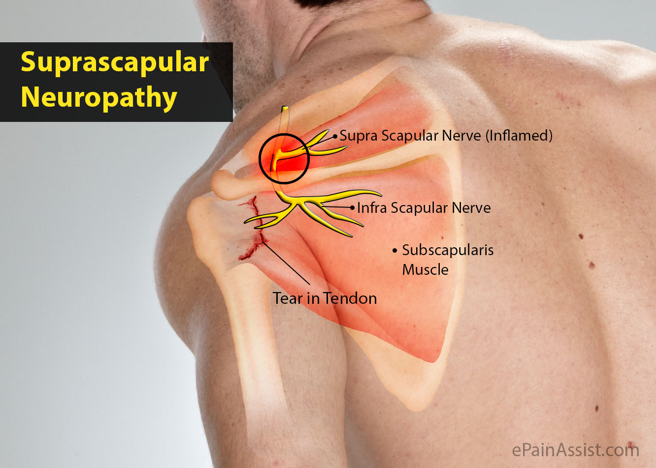 Suprascapular Neuropathy Definition Treatment Causes Symptoms