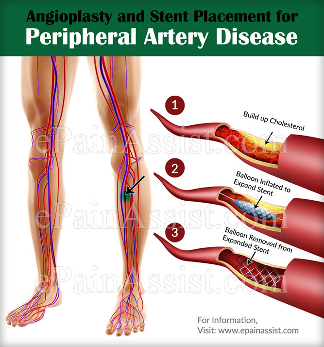 Treatment for Peripheral Artery Disease|Medications|Surgery|Exercise ...