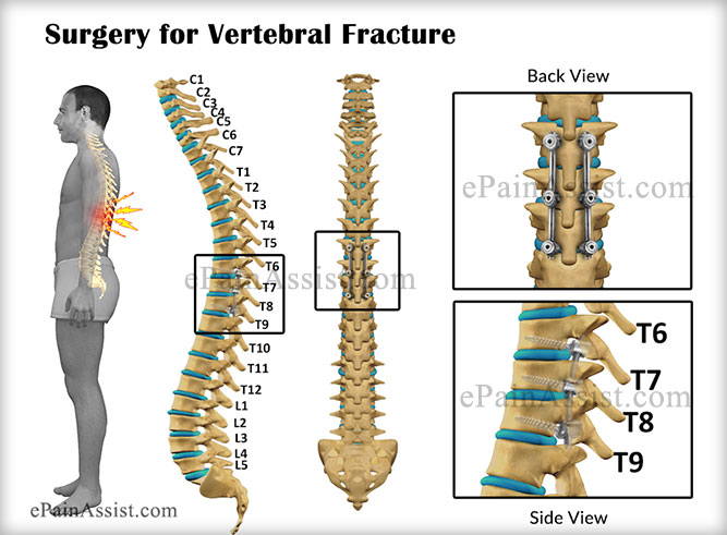 Surgery for Vertebral Fracture