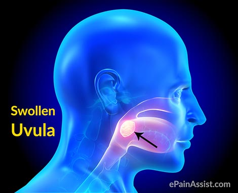 Signs & Symptoms of Swollen Uvula or Uvulitis