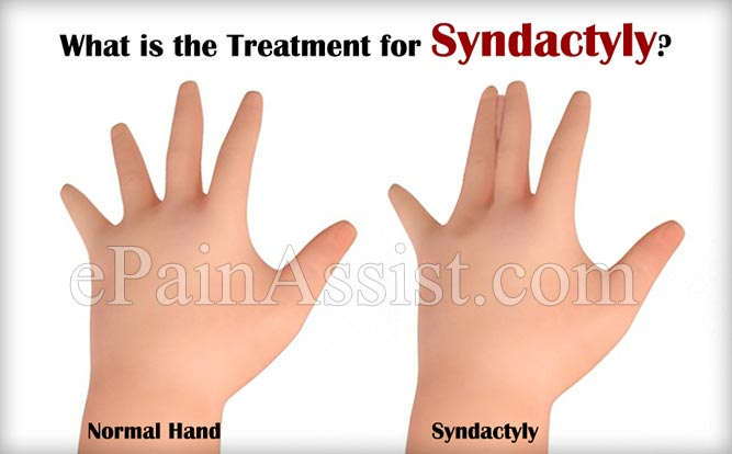 What is the Treatment for Syndactyly
