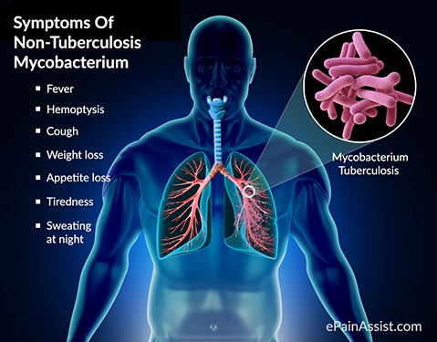 tuberculosis causes symptoms and treatments Tuberculosis is one of the major causes of disability and death worldwide more than 95 percent of tb deaths occur in low- and middle-income countries.