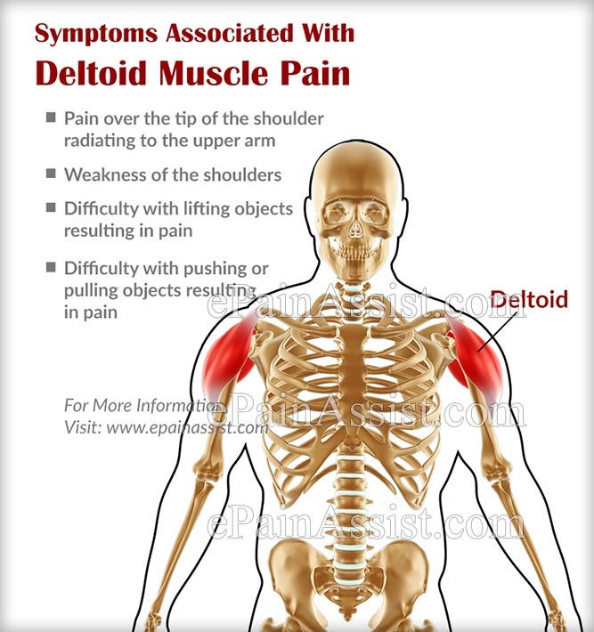 Deltoid Muscle Paincausessymptomstreatmentrecovery