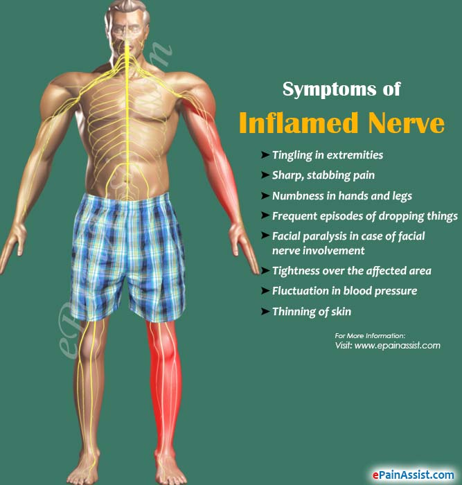 Causes, Symptoms of Inflamed Nerve & its Treatment, Prognosis
