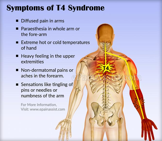 T4 Syndrome Signs Symptoms Causes Treatment Recovery