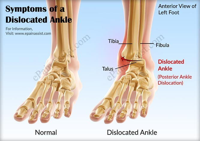 Symptoms of a Dislocated Ankle or Ankle Dislocation