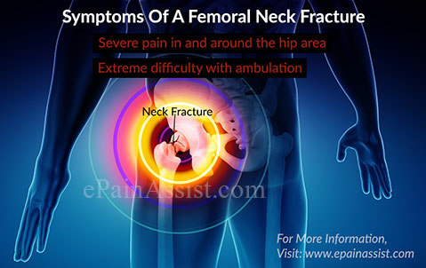 What Are The Symptoms Of A Femoral Neck Fracture?