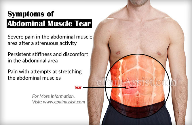 What are the Symptoms of Abdominal Muscle Tear?