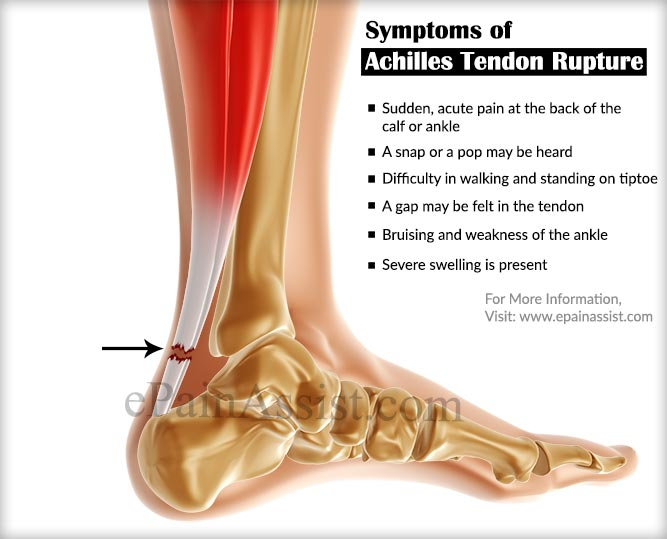 achilles tendon rupture: treatment, rehabilitation, sports massage, Human Body