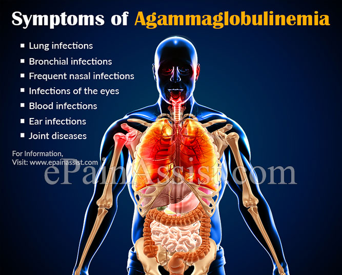 What is Agammaglobulinemia?