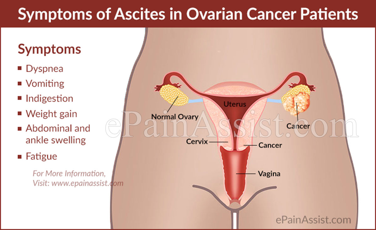 Signs and Symptoms of Ascites in Ovarian Cancer Patients