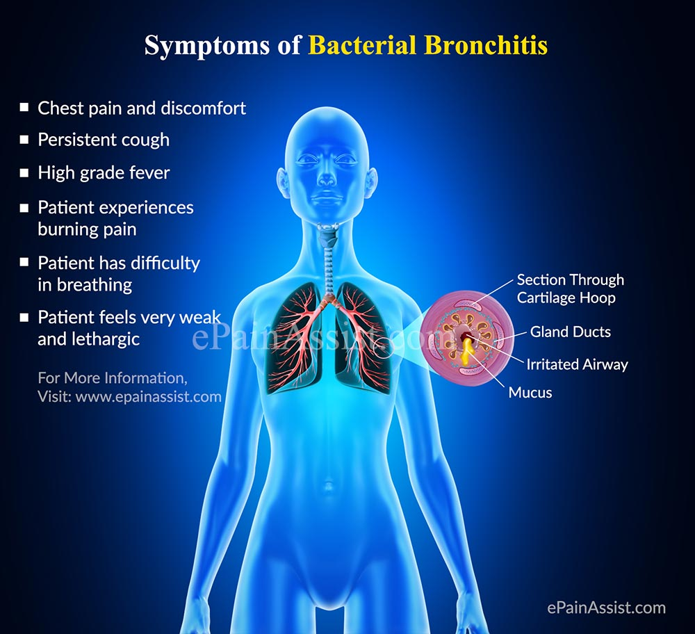 What Is Bronchitis All About the Symptoms, Causes, and More