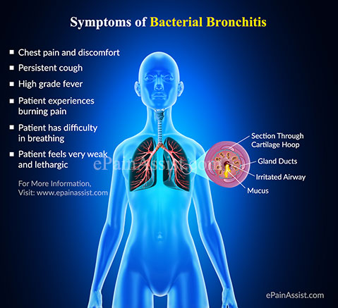 Symptoms of Bacterial Bronchitis