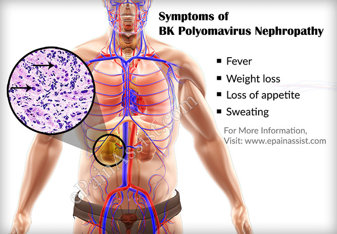 Symptoms of BK Polyoma Virus Nephropathy