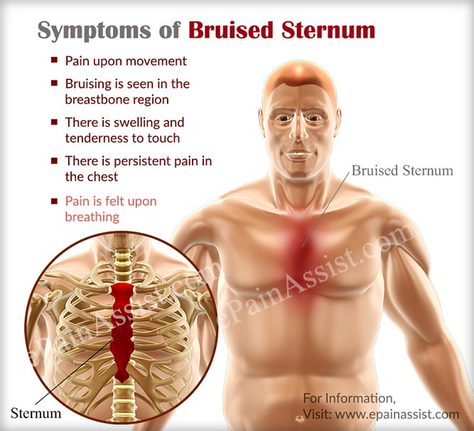 Symptoms of Bruised Sternum