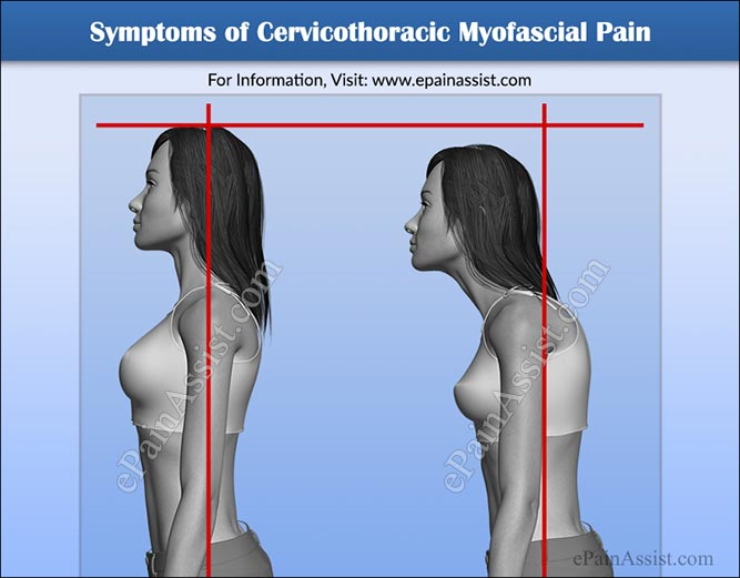 Symptoms of Cervicothoracic Myofascial Pain