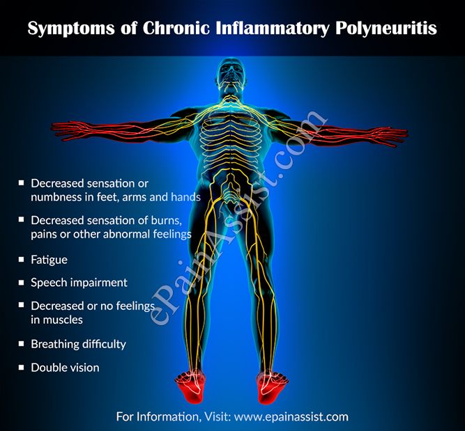Symptoms of Chronic Inflammatory Polyneuritis