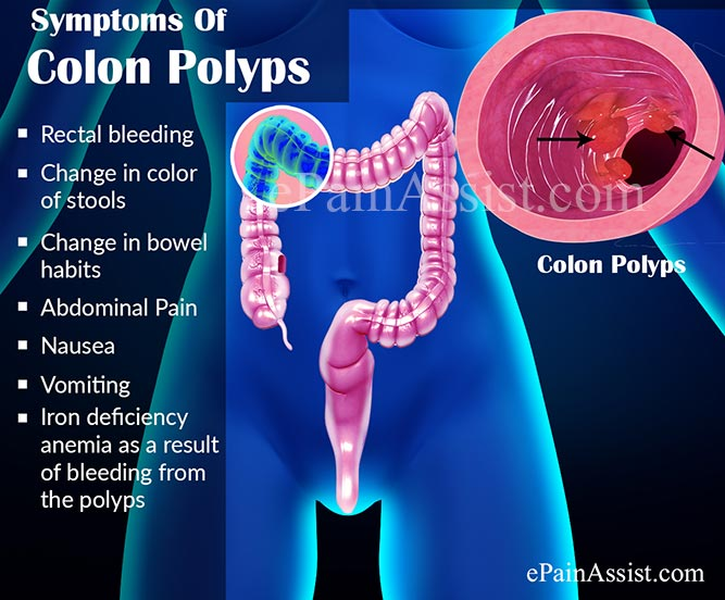 Symptoms Of Colon Polyps