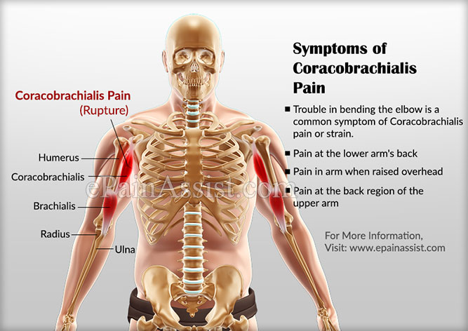 Symptoms of Coracobrachialis Pain or Strain