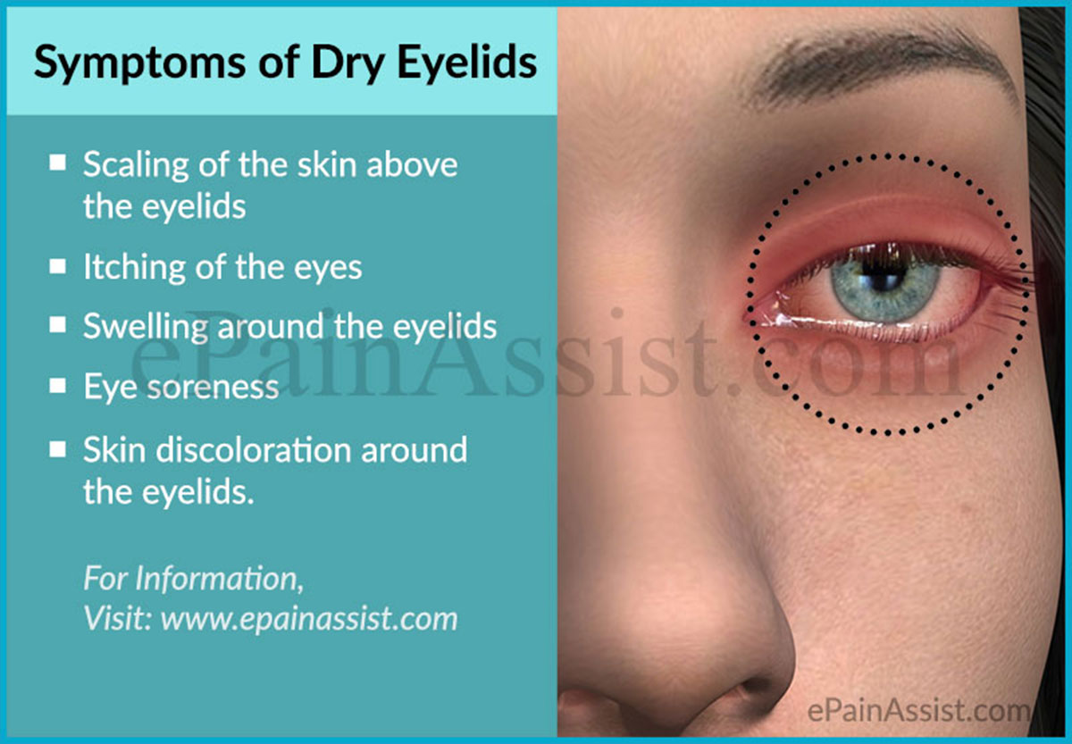 Dry Eyelids|Causes|Symptoms|Treatment
