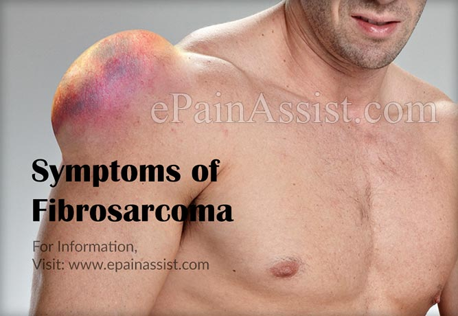 Signs and Symptoms of Fibrosarcoma