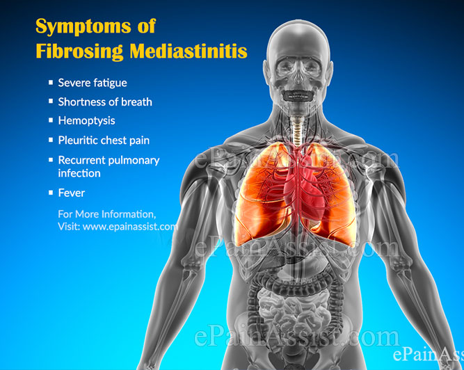What are the Symptoms of Fibrosing Mediastinitis?