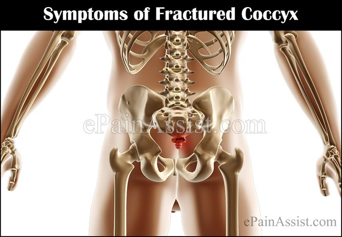 What are the Symptoms of Fractured Coccyx?