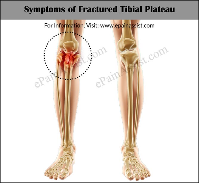 Signs and Symptoms of Fractured Tibial Plateau or Tibial Plateau Fractures