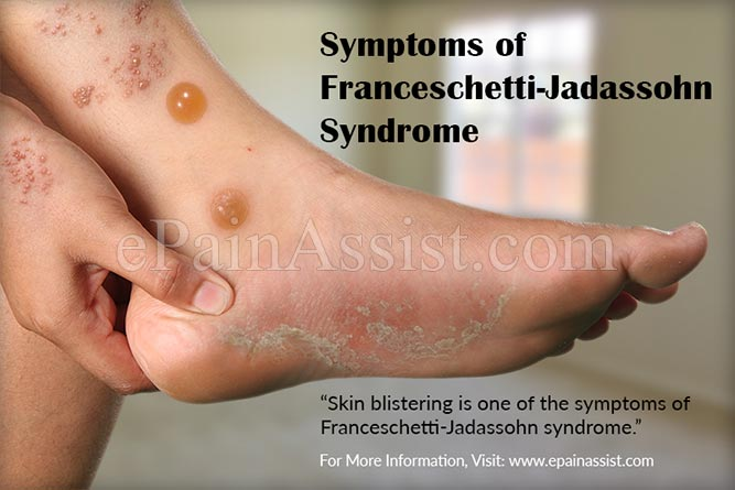 Symptoms of Franceschetti-Jadassohn Syndrome