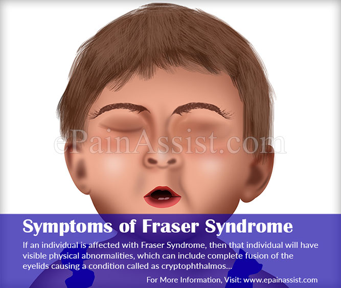 Symptoms of Fraser Syndrome