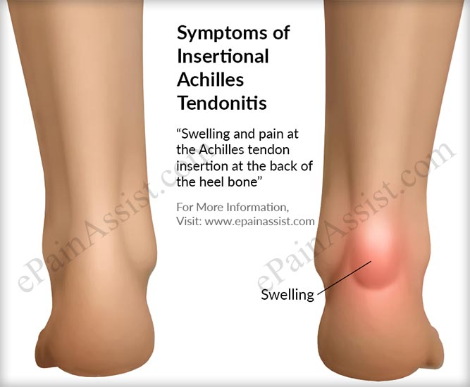 Signs and Symptoms of Insertional Achilles Tendonitis
