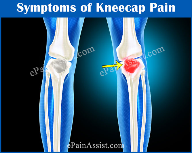 Symptoms of Kneecap Pain