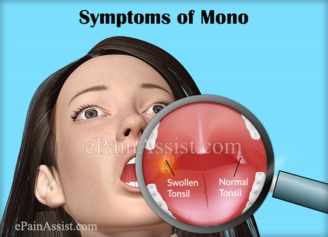 How to Recognize Symptoms of Mono in Adults?