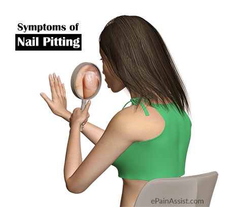 Symptoms of Nail Pitting or Pitted Nails