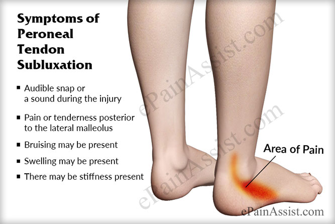 peroneal tendon subluxation: treatment, recovery, exercises, Cephalic Vein