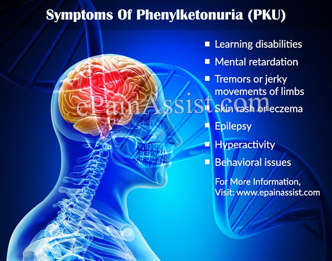 causes effects signs and symptoms and treatment of phenylketonuria pku Read about phenylketonuria (pku),  pku doesn't usually cause any symptoms if treatment is  these adverse effects can usually be reversed by going back on to a.