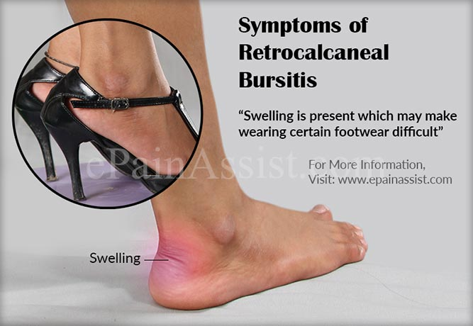 Symptoms of Retrocalcaneal Bursitis or Achilles Tendon Bursitis